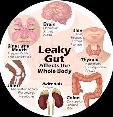 circle of leaky gut