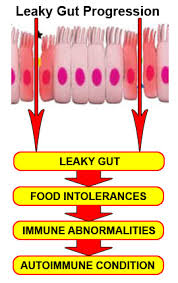Leaky gut causes